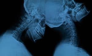 whiplash, neck injury